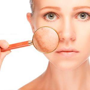 Tractament facial anti-taques